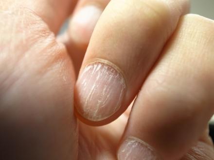Slip af med dine gule negle